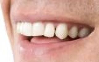 Передние зубы по соннику. Заглянем в сонник: выпадающие зубы — к чему это