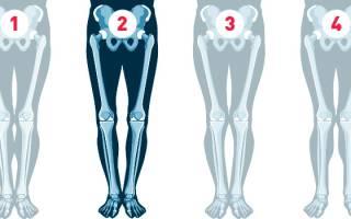 Х-образное искривление ног. Причины кривых ног и их коррекция