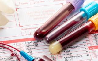 Hpv 6 расшифровка. Где проводится анализ на ВПЧ? Факторы активации вируса