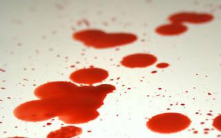 К чему сниться кровотечение по женски. К чему снится идет кровь