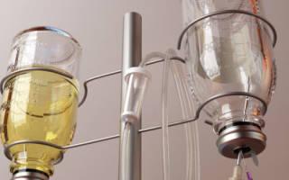 Гипонатриемия хроническая. Всё, что нужно знать о гипонатриемии