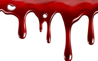 Кровотечение толкование сонника. К чему снится идет кровь