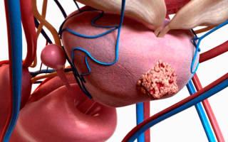 Карцинома простаты симптомы. Карцинома предстательной железы